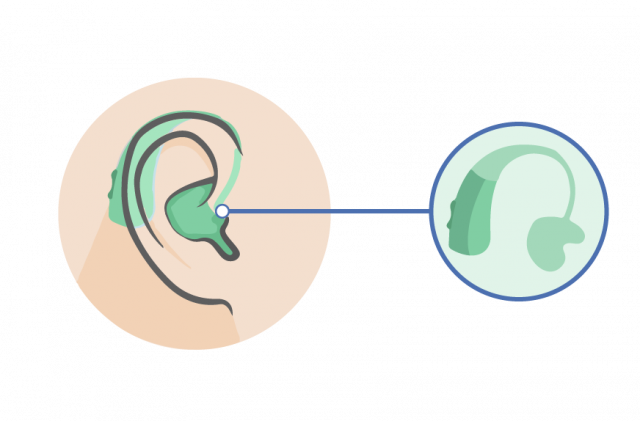 behind the ear (bte) earmould hearing aid