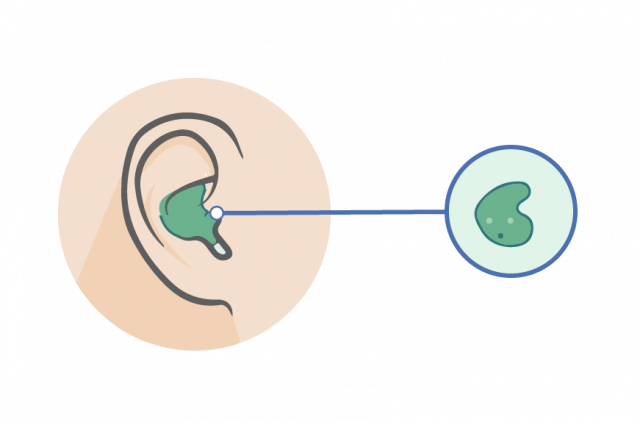 ITE in the ear hearing aid